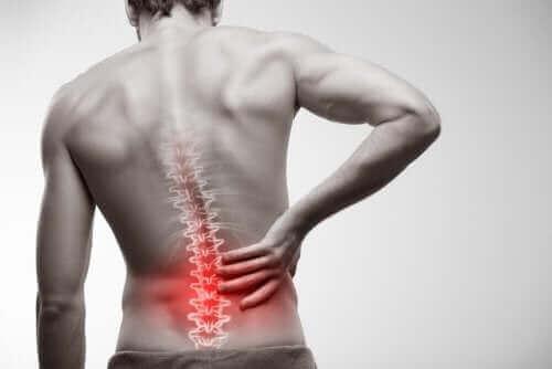 強直性脊椎炎の診断と治療方法