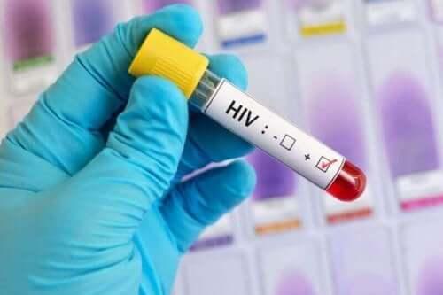 世界エイズデーについて知っておくべきすべてのこと 血液検査