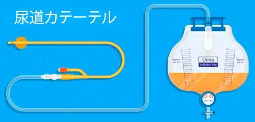 産後よくある尿トラブル、尿閉を治す方法
