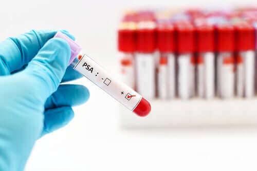 早期発見に役立てよう!前立腺がん検査の実施方法