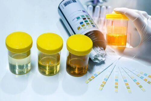 亜硝酸塩検査:尿内に亜硝酸塩が見つかる場合 尿検査