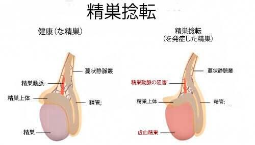 男性の病気:精巣捻転症の原因と症状