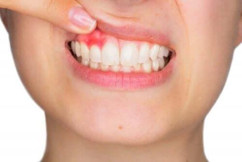 マウスウォッシュに関するガイドライン 歯茎の腫れ