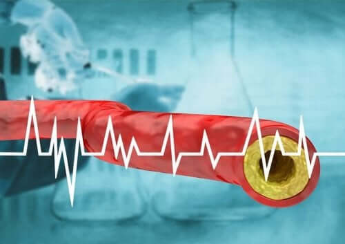 脳卒中の危険因子とその症状について 高コレステロール