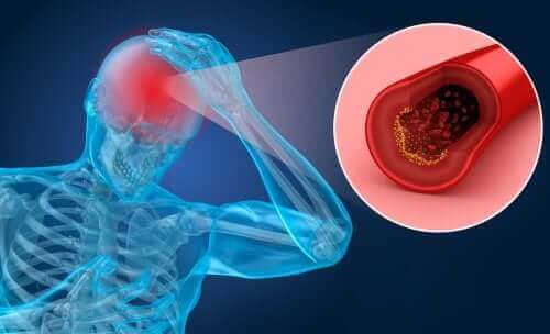 脳卒中の危険因子とその症状について