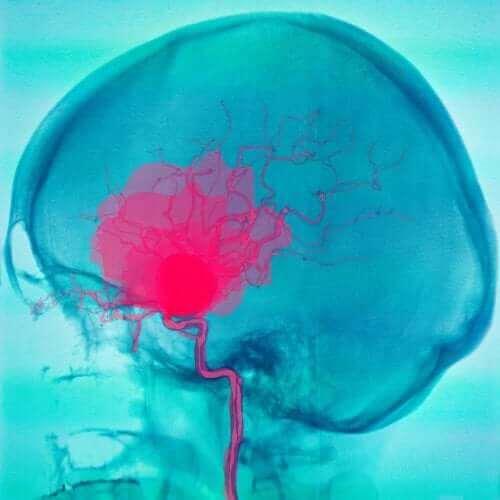 くも膜下出血と硬膜下血腫について