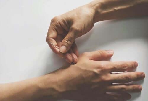 手に鍼をする人