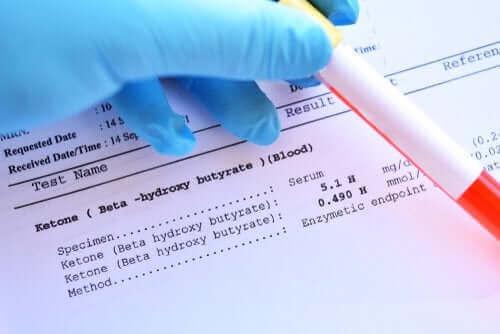代謝性アシドーシスの原因と治療法