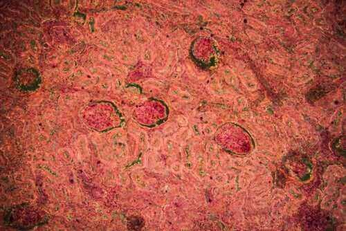 腎結核:さまざまな診断法と治療法