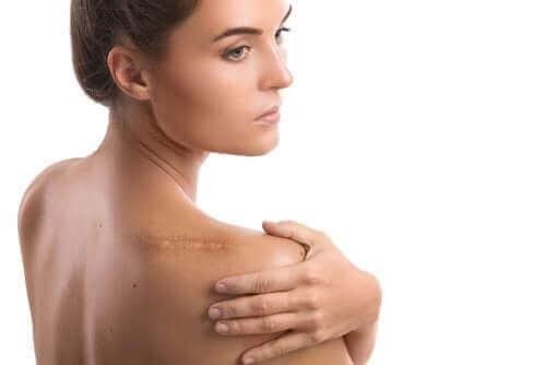 肩腱板断裂:リハビリテーションの段階  術後の傷跡