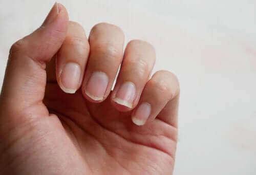 もろくなった爪の強化に役立つ4つの自然療法