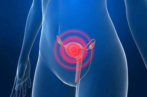 子宮腺筋症:症状と治療法について 痙攣が起こっている女性