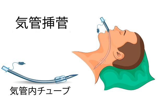 気管内チューブの種類と使い方