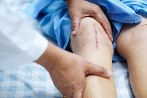 人工膝関節移植手術後の回復を早めるポイントとは