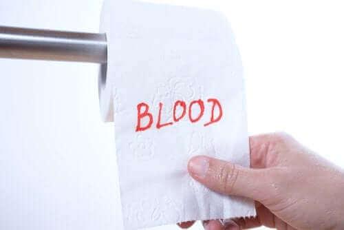 直腸出血:その理由は何?
