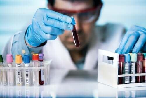 HIV感染者は新型コロナウイルスの危険によりさらされますか? 試験管を持った男性