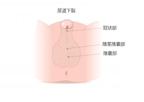 知っておきたい!尿道下裂の症状と治療について