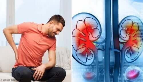 腎膿瘍は、膀胱で始まり、腎臓とその周辺に広がる尿路感染症によって起こります。今回の記事で詳しく学びましょう!このままご覧ください。 背中の痛みを感じている男性