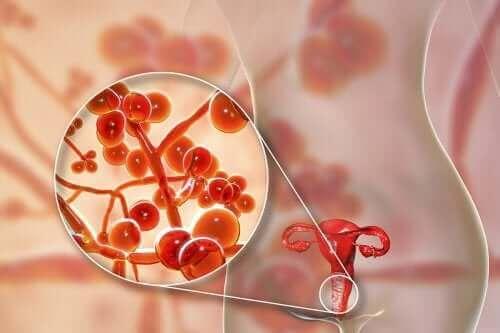マイコプラズマ・ジェニタリウム:原因、症状、治療