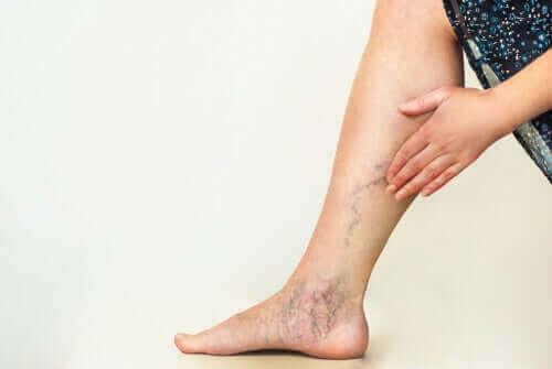 ロックダウン中に脚の血液循環を改善する方法 静脈瘤