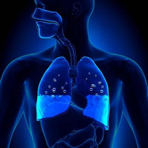 肺水腫:その原因と症状