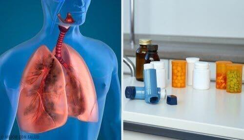 COPDの治療 エアロゾル療法って何?