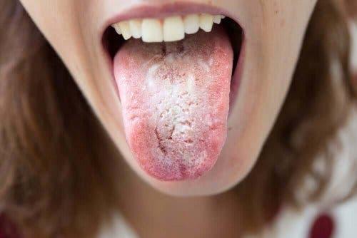 舌に黒い点
