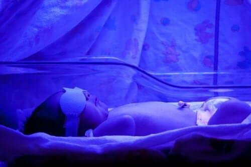 新生児黄疸について知っておくべきこと