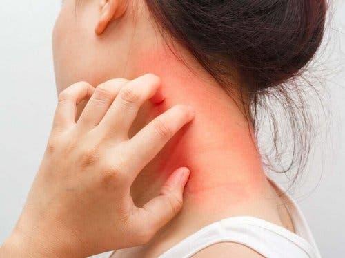 アトピー性皮膚炎について詳しく学ぼう! 皮膚を掻く女性