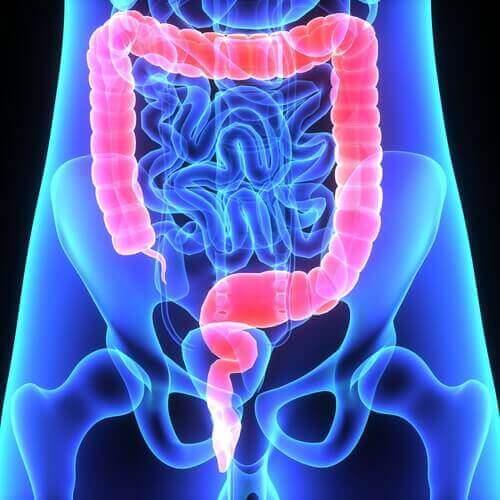 ヒトの大腸 大腸ポリープ〜その特徴と症状について