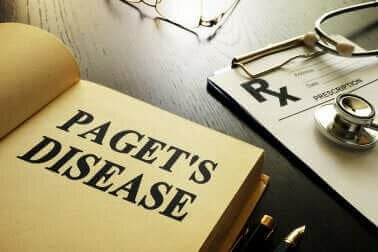 パジェット病について知っておきたいこと