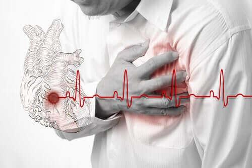 心臓発作 低用量アスピリン
