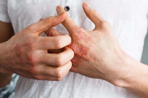 アトピー性皮膚炎について詳しく学ぼう!