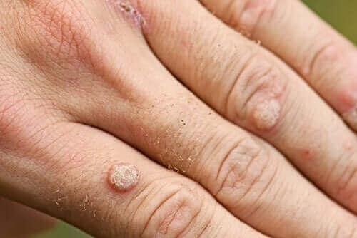 イボの種類と治療法