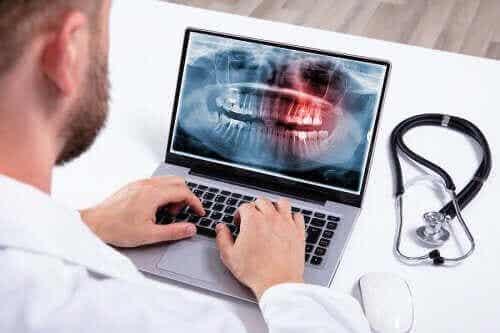 【歯がいっぱい生え過ぎた?】過剰歯の原因と治療