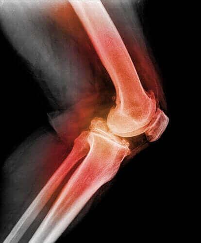 【膝蓋骨(しつがいこつ)脱臼って?】知っておきたい知識