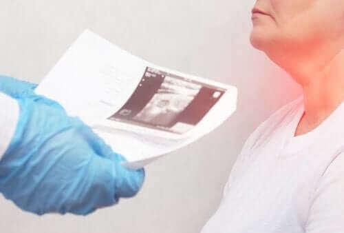 【結節性甲状腺腫(けっせつせいこうじょうせんしゅ】原因と症状