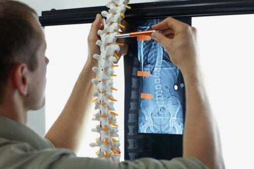 がんの骨転移 症状と治療