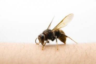 ツマアカスズメバチに刺されたらどうすればいい?