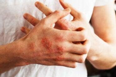 乾癬の症状を抑えてくれるかもしれない食べ物とは