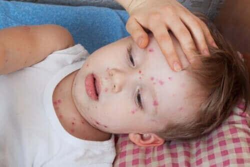 子供の蕁麻疹の治し方