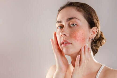 肌荒れしちゃう!  反応性肌の症状、原因、対処法って?