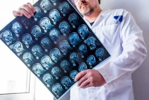 てんかんの種類 頭部のレントゲン写真