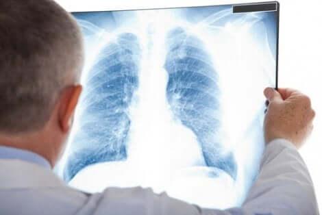 胸部レントゲン写真