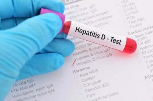 5種類の肝炎とそれぞれの主な特徴について 肝炎の検査