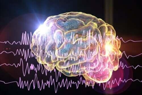 てんかんの種類 ニューロン