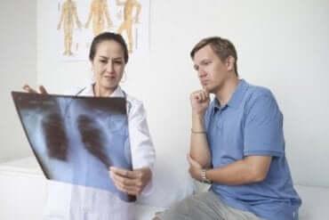 胸膜炎:その症状と原因、治療について知ろう