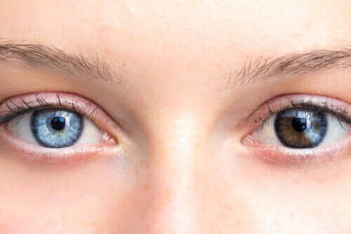 瞳の色が変わってきたら要注意