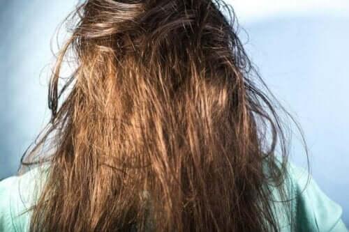 髪のベタつきの原因 ヘアケア