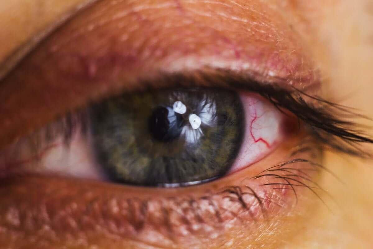 詳しく知りたい!涙目が起こる原因について 充血した目